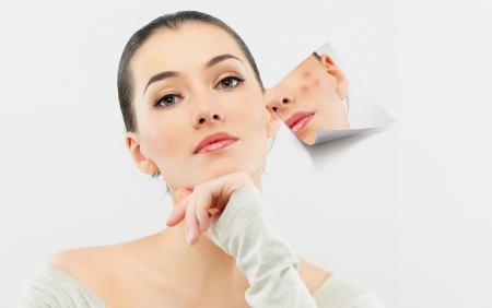 Makijaż cery trądzikowej – jak go zrobić?