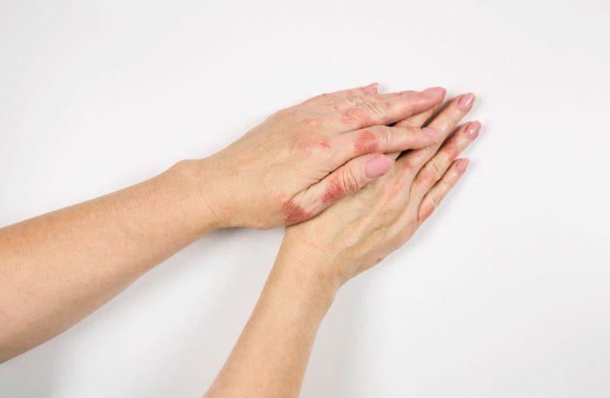 Egzema na dłoniach – czym smarować i jak leczyć?