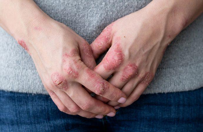 Łuszczyca – co to za choroba i jak ją leczyć?