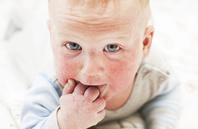Dziecko z alergią skórną